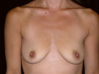 Breast augmentation before 293919