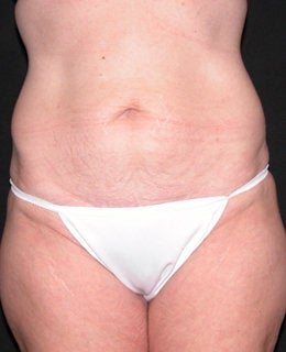 Tummy Tuck with Flank Liposuction before 330911