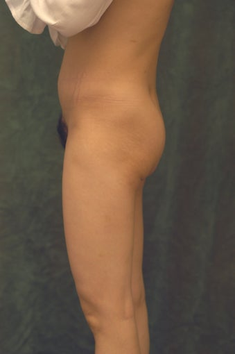 Women's Buttocks Augmentation  before 518116