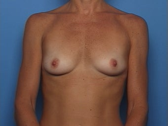 Breast Augmentation before 136547