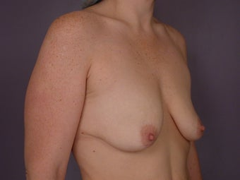Breast Lift / Breast Augmentation before 291189