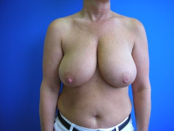 Bilateral Breast Reduction before 513566
