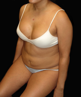 Tummy Liposuction before 230745