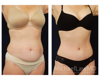 Abdominoplasty - Tummy Tuck after 396017