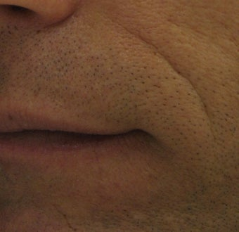 Belotero for fine etched-in lines in nasolabial folds before 633104