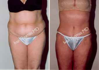 Tummy Tuck before 242938