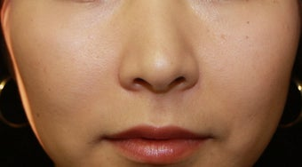 Injectable Filler after 398377