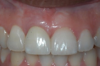 Replacment of missing tooth with dental implant