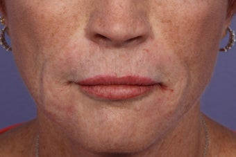 Radiesse and Juvederm - Smile lines after 309227