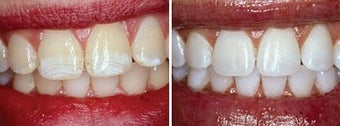 Teeth Whitening with Opalescence before 6653