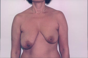 Breast Lift before 218954