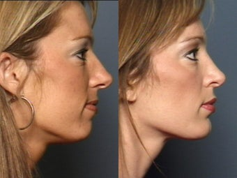 Nose Surgery after 338485
