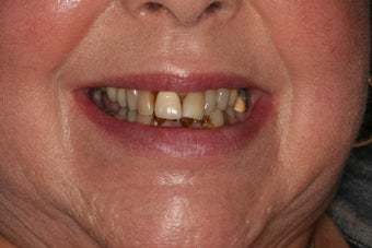 Smile makeover/full mouth reconstruction before 318865