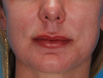 Lip Augmentation with Juvederm after 220082