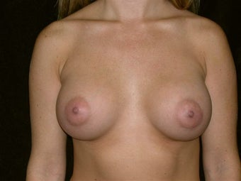 Breast augmentation after 293904