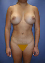 Liposuction and Breast Augmentation after 96767