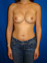 Breast Reconstruction Surgery after 136223