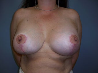 Breast Reconstruction after 589935