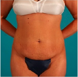 Tummy Tuck before 55091