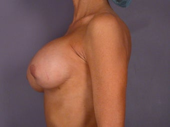 Breast Revision before 307243