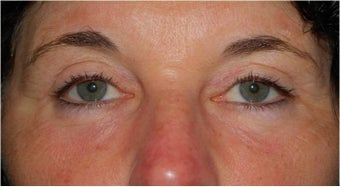 upper and lower Laser Blepharoplasty-Eyelid Surgery after 341305