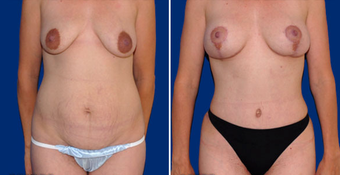 Tummy Tuck before 496376