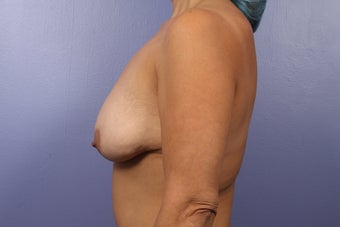 Mommy Makeover- Breast Augmentation 466147