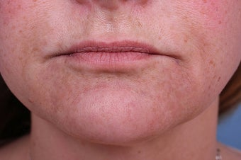 Evolence Collagen for Marionette Lines and Chin  after 114168