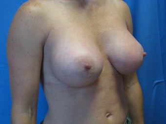 Breast Augmentation  364617