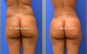 Brazilian Buttock Lift before 567088