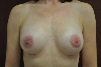 Breast Augmentation with Silicone Implants