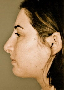 Rhinoplasty after 278373