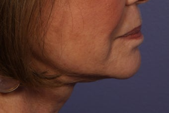 Botox to Neck (Platysmal Band Muscles) after 445465