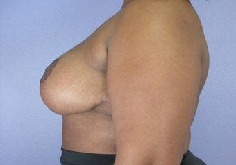 Breast Reduction after 285330
