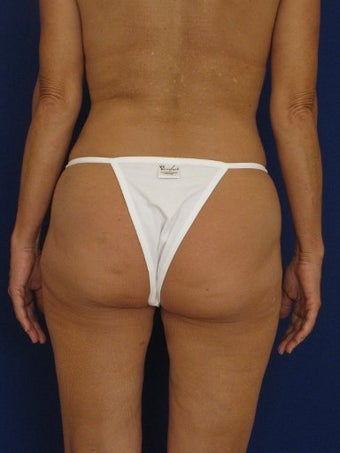 Vaser Hi Def Liposuction of abdomen, thighs, flanks and back with fat injections to buttocks before 422734