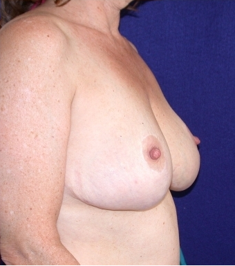 Breast Reduction after 520393