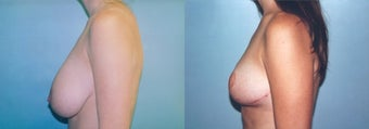 Breast Reduction using Inverted T incision