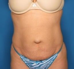 Abdominoplasty before 464713
