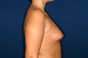 breast enlargment with auto fat transplant before 220957