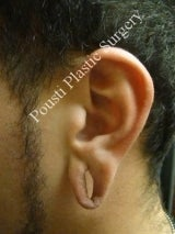Earlobe Repair Surgery 612296