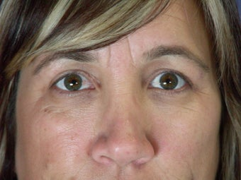 Eyelid Surgery  after 306459