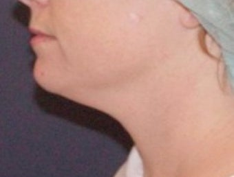 Neck lipo before 374872