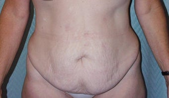 Circumferential body lift and Liposuction before 118294