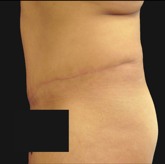 Abdominoplasty 458932