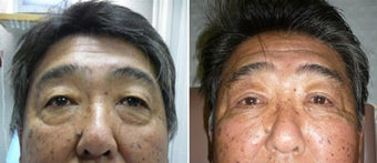 Cosmetic eyelid surgery before 128408