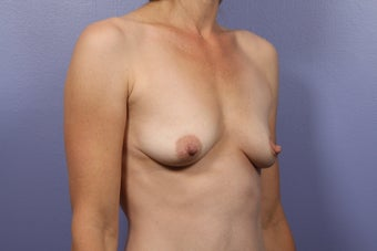 Breast Lift / Breast Augmentation before 291168