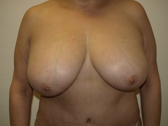 Breast Reduction before 314184