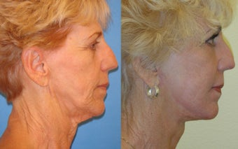 Image Lift, Full Face Laser before 351059