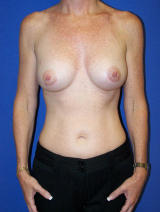 Breast Augmentation with Silicone Gel Implants after 122671