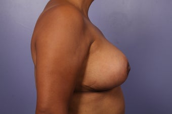 Breast Reduction after 526781
